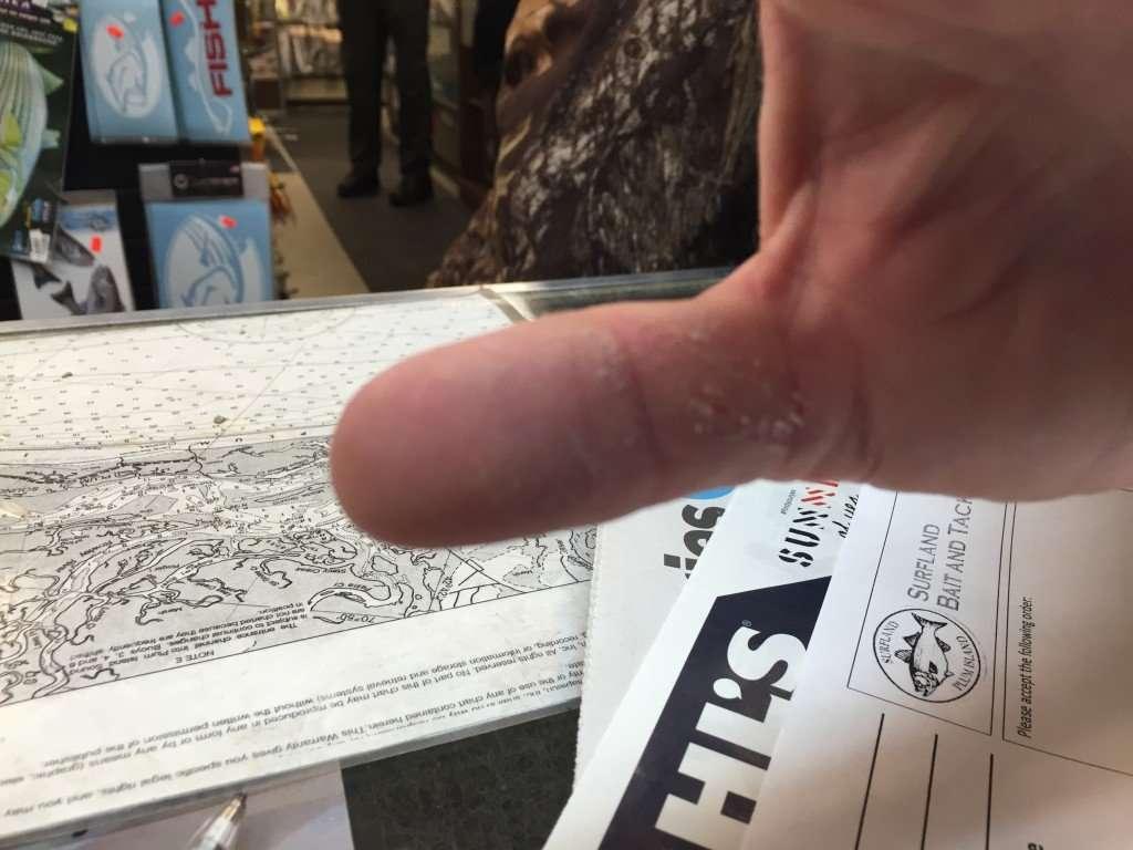 striper thumb